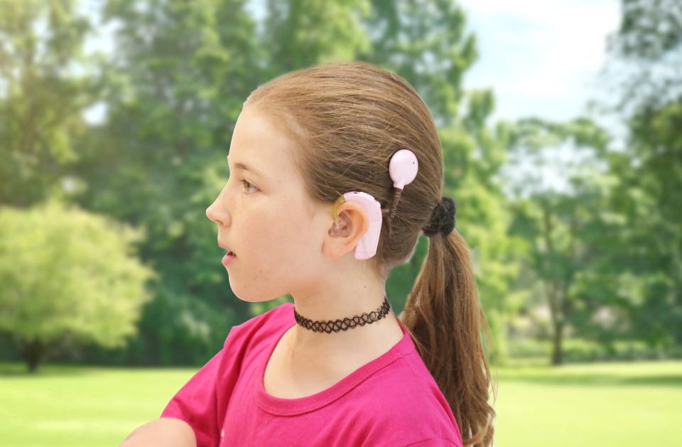 ילדה עם לקות שמיעה עם שתל שבלול